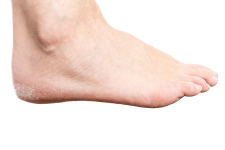Female foot with cracked heel isolated on white background as dry skin concept