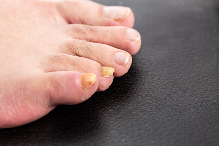 Yellow male fingernail with fungus as fungal disease of toenails or foot nail toes