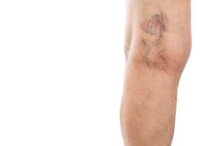 Gros plan des varices derrière le genou de la patiente comme concept de problèmes médicaux isolé sur fond de studio blanc Banque d'images