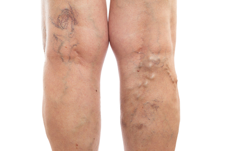 Female legs with swollen veins and varicose as vascular condition concept isolated on white studio background Imagens