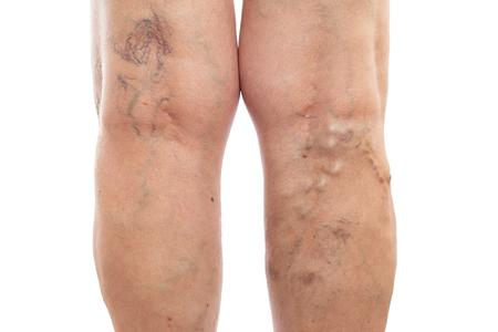 Piernas femeninas con venas hinchadas y varicosas como concepto de condición vascular aislado sobre fondo blanco de estudio