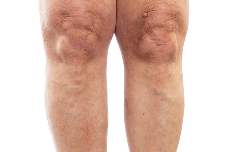 Closeup picture of female legs with varicose veins as medical problem concept isolated on white studio background Stock Photo