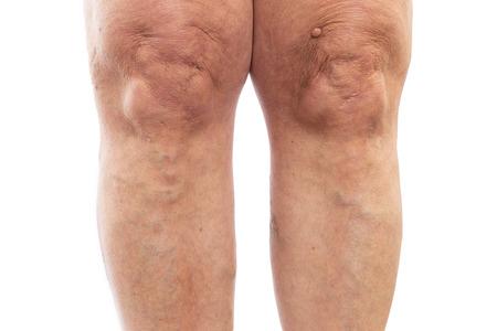 Immagine del primo piano delle gambe femminili con le vene varicose come concetto di problema medico isolato sul fondo bianco dello studio Archivio Fotografico