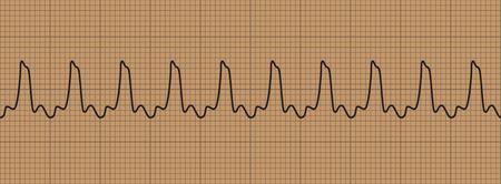 Abnormal cardiogram ventricular tachycardia., vector illustration