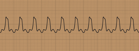 Abnormal cardiogram ventricular tachycardia., vector illustration