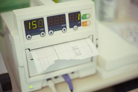 Fetal Herzschlag-Monitor, Kardiotokographie Standard-Bild - 55757388