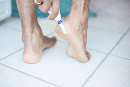 callus: Electric foot scrubber being used in pedicure