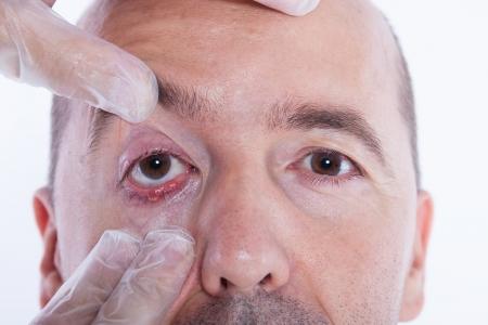 abscess: Man beeing examinated