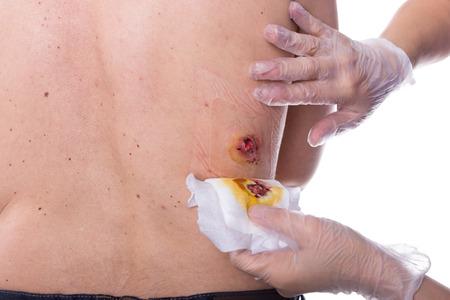 herida: El vendaje de una herida es beeing cambió Foto de archivo
