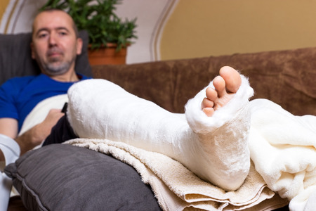 accident patient: A man lying with a broken foot on the sofa at home