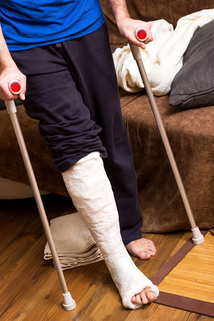 broken leg: A man with broken foot tries to walk with crutches