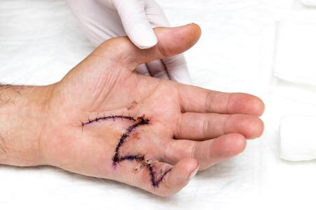 Obrázek ruky s velkým stehem po operaci Reklamní fotografie