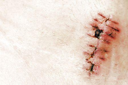 detail of scar photo