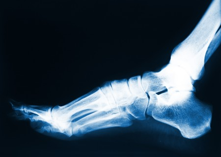 x-ray image of human foot photo