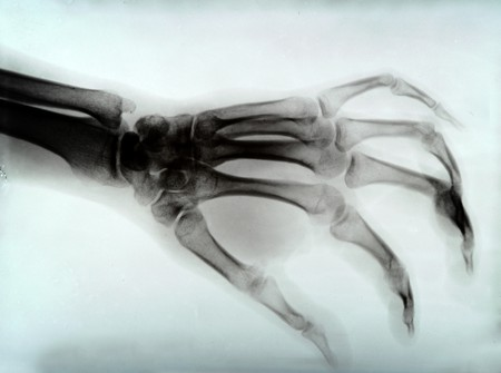 X RAY: detail of hand xray medical image