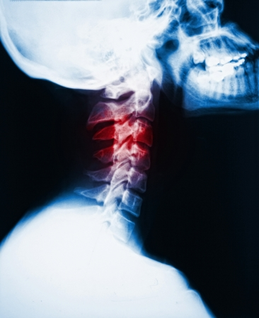 detail of neck x-ray image and red zone pain photo