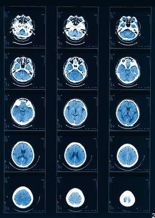 X-ray computed tomography fine head background Stock Photo - 9214555