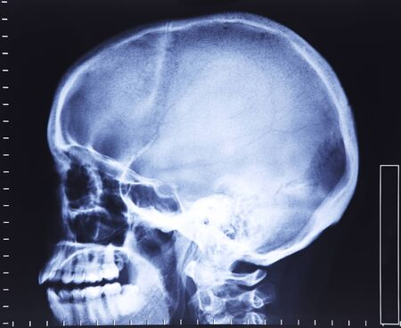 fine image of medical xray skull background Stock Photo - 9214554