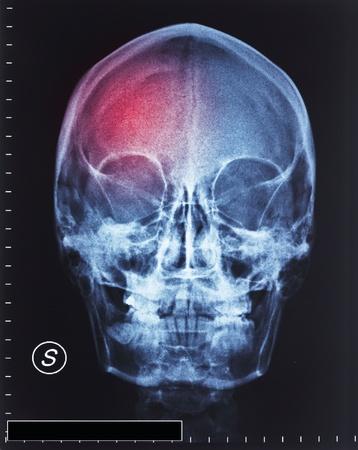 head injury: detail of head xray film and trauma Stock Photo