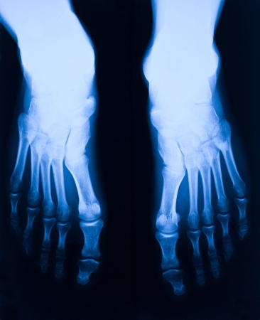 image of blue foot xray Stock Photo - 18414644