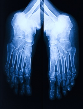 radiological: image of blue foot xray Stock Photo