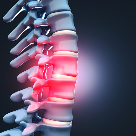 herniated: 3d image of Herniated disk human spinal