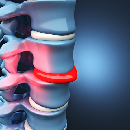 Herniated ディスク人間脊髄の 3 d 画像 写真素材