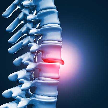 intervertebral: 3d image of Herniated disk human spinal