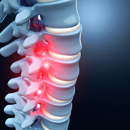 herniated: 3d image of human spinal