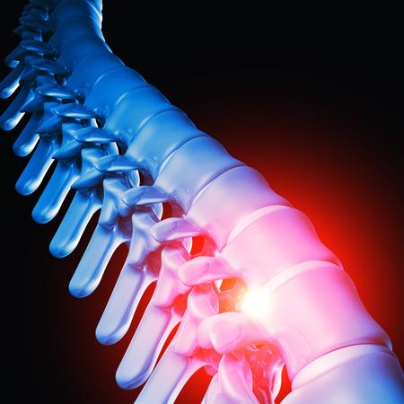 intervertebral: 3d image of human spinal