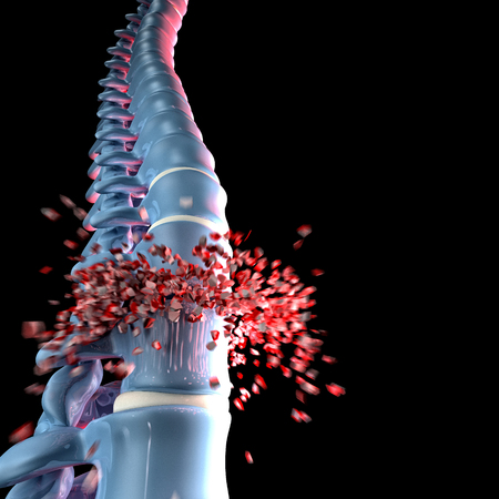 3d image of human spinal