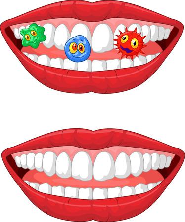 boca abierta: Historieta sonriente labio Vectores