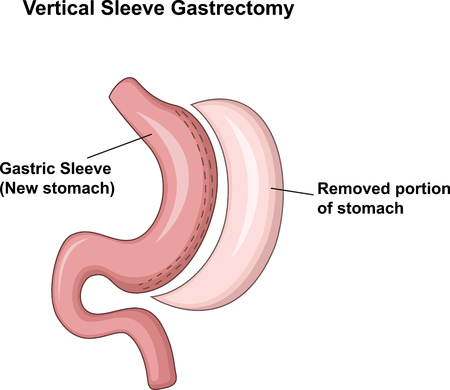 fundus of stomach: Vector illustration of Vertical Sleeve Gastrectomy VSG