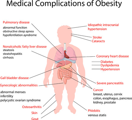 obeso: Ilustración del vector de complicaciones médicas de la obesidad Vectores
