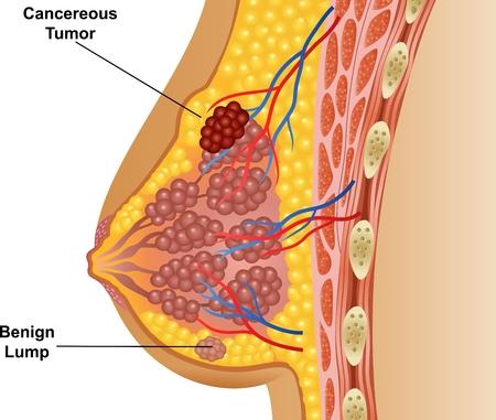 senos: Ilustración del vector de tumor de mama canceroso
