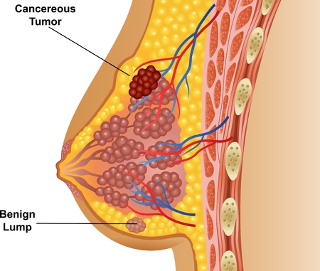 breast: Vector illustration of cancerous breast tumor Illustration