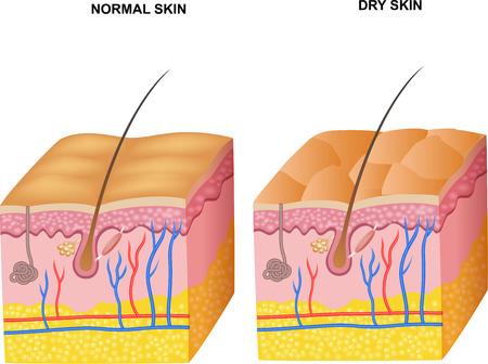 vasos sanguineos: Ilustración del vector de las capas de la piel normal y piel seca Vectores