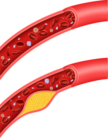 Vector illustration of cholesterol blocking artery