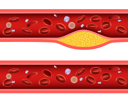 red blood cell: Ilustración del vector de la arteria bloqueada con mala anatomía colesterol