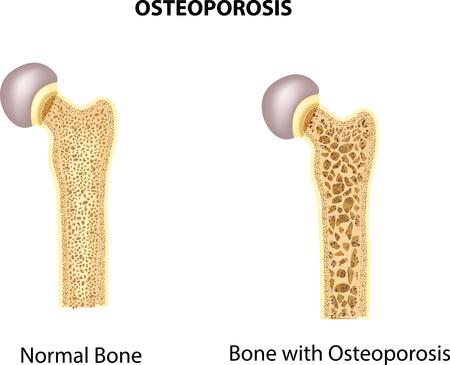 fractura: Ilustraci�n del vector del hueso de la cadera. hueso normal y el hueso con osteoporosis Vectores