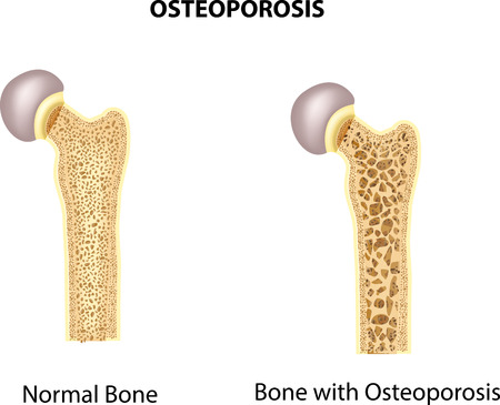 menopause: Vector illustration of bone of hip. normal bone and bone with osteoporosis