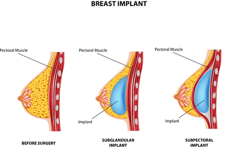 Beautiful breasts: Vector illustration of Plastic surgery of breast implant Hình minh hoạ