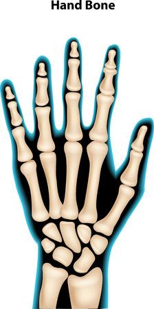 roentgen: Vector illustration of hand bone