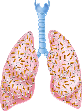 lung disease: Vector illustration of Smokers Lungs Illustration