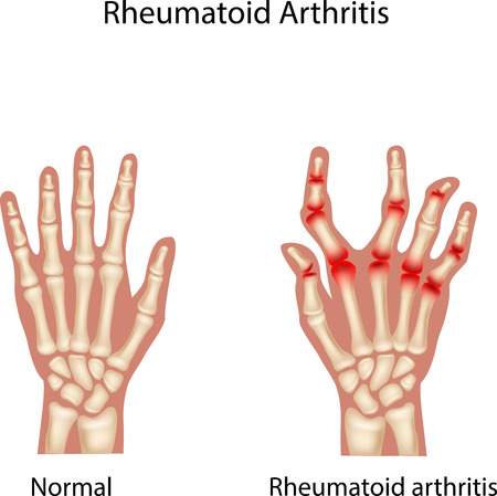 Vector illustration of Rheumatoid Arthi
