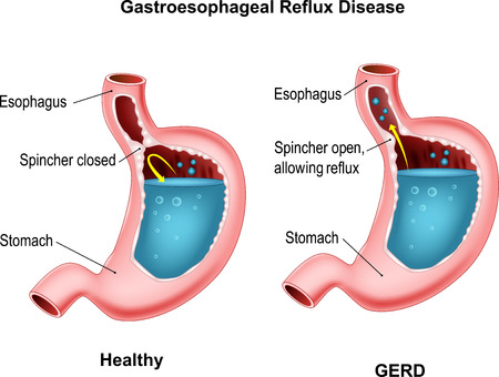 acid reflux: illustration of Gastroesophageal reflux disease