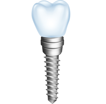 Vector illustration of dental implant isolated on white background