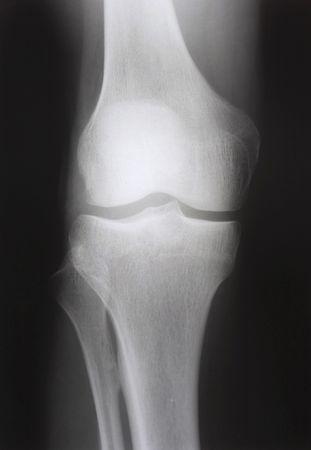 broken knee: X-ray of knee