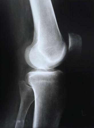 X-ray of knee Stock Photo - 3009552