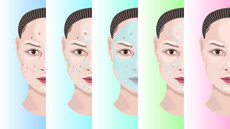 Woman face step by step treatment acne Illustration